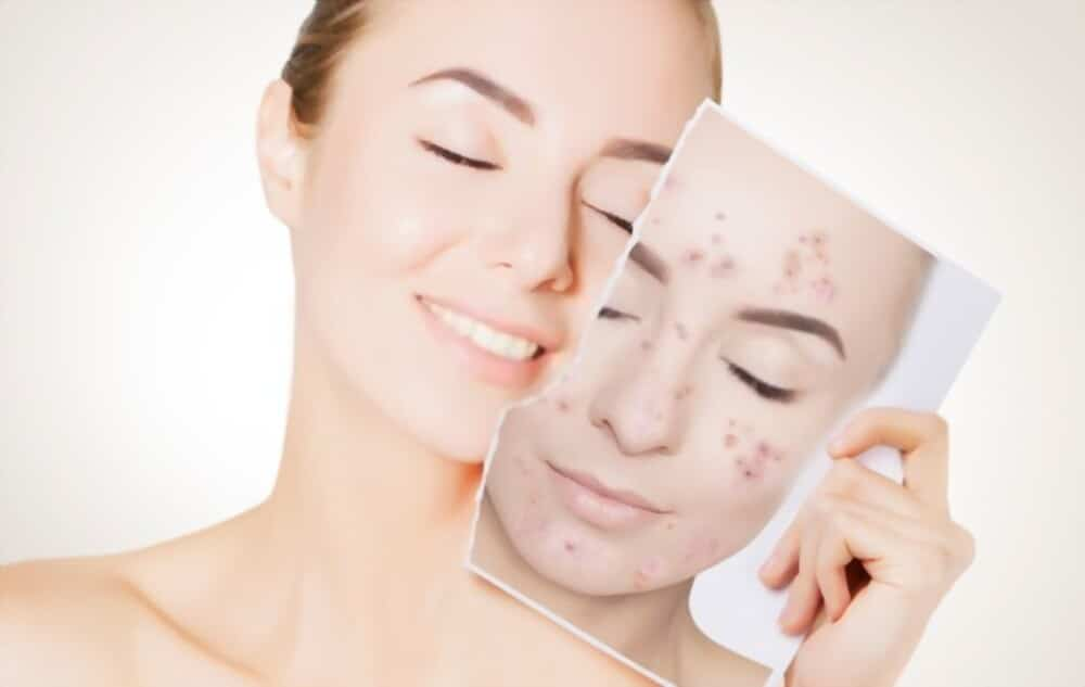 This Is Indicated By Pimples – How To Eliminate Them