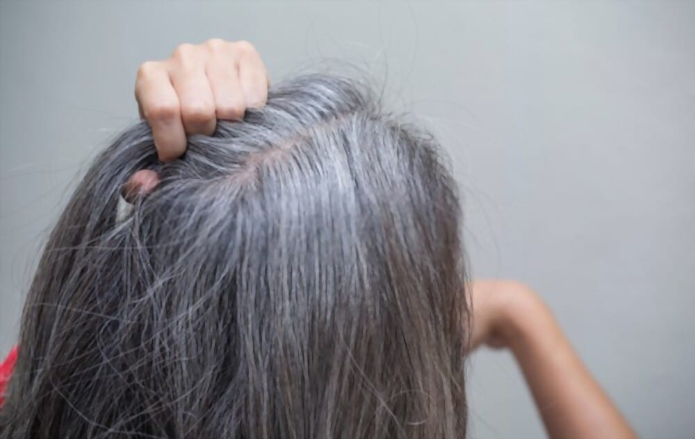 REVERSE GRAY Why White Hairs Appear Causes and ADVANCED Solutions of White Hair
