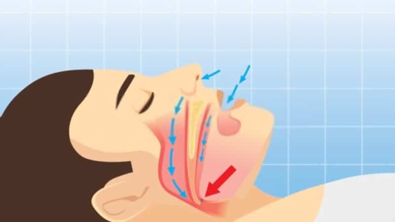 DO NOT IGNORE SNORING Snoring Warns of a Health Problem How to Eliminate Snoring and Its Causes